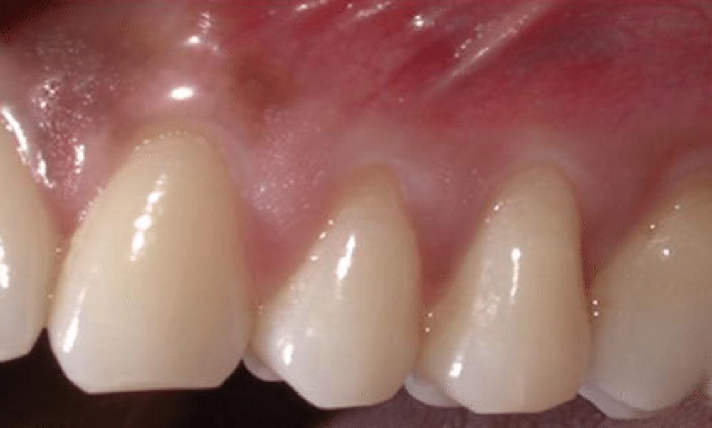 umik dlesni