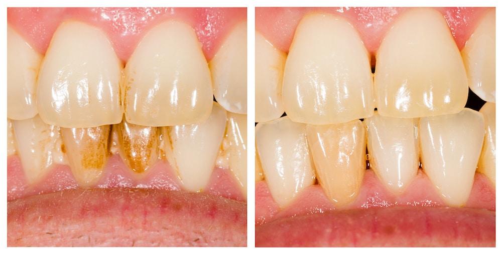 peskanje zob